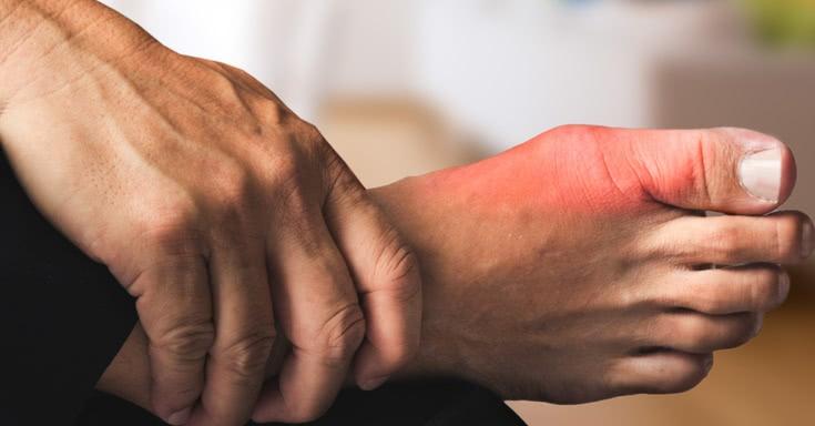 Лечение тяжелых случаев подагры в Финляндии